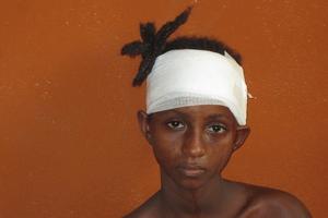 Fati de 11 años ha sufrido ataques con machetes por las milicias antibalaka @Amnesty International